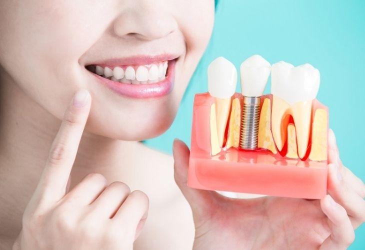 Nhổ răng bao lâu thì trồng răng giả được? Với Implant bạn có thể thực hiện luôn sau khi nhổ