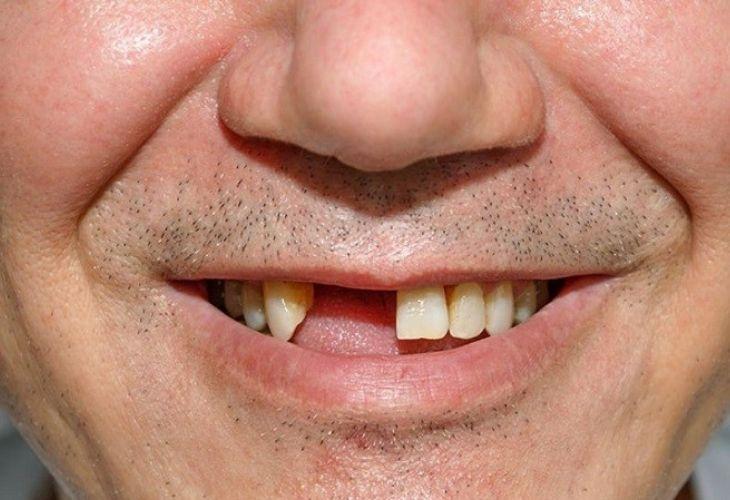 Hình ảnh bệnh nhân bị mất răng