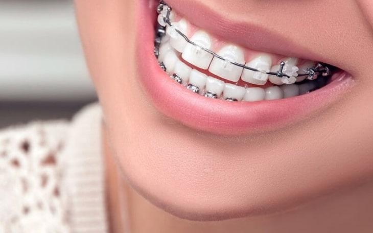 Phương pháp niềng răng ngày càng hiện, phù hợp với nhiều lứa tuổi