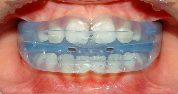 Từ 6 - 11 tuổi trẻ em có thể niềng răng bằng hàm trainer