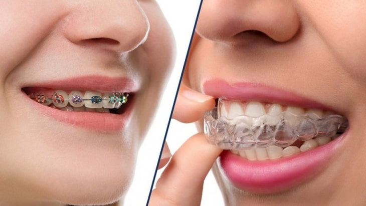 Độ tuổi lý tưởng nhất để niềng răng là từ 12 - 16 tuổi