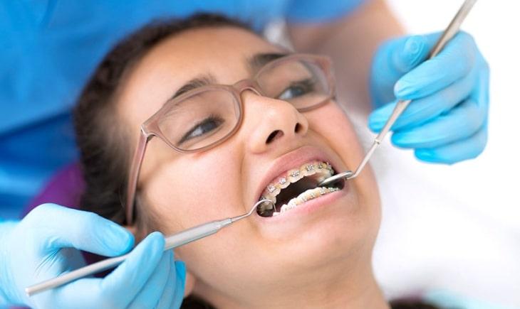 Các bác sĩ nha khoa khuyên nên niềng răng cho tới năm 50 tuổi