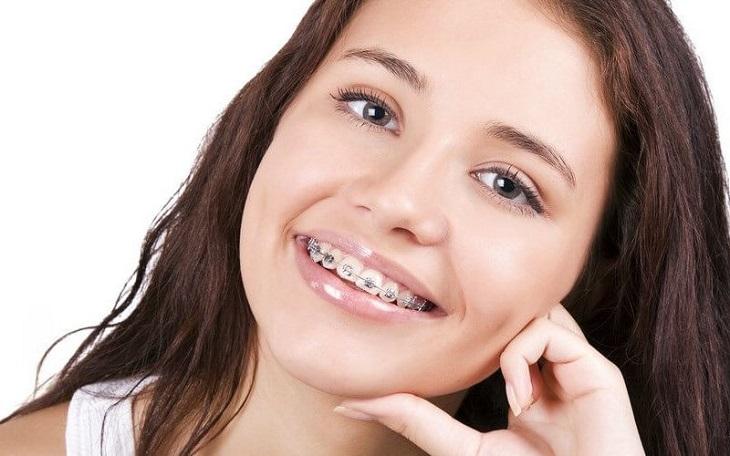 Niềng răng bị hóp má là tình trạng nhiều người niềng có thể gặp phải
