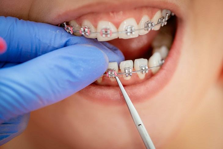 Thực hiện kỹ thuật chỉnh nha không đúng là nguyên nhân niềng răng bị hóp má