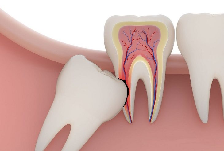 Răng số 8 mọc khi con người vào độ tuổi trưởng thành