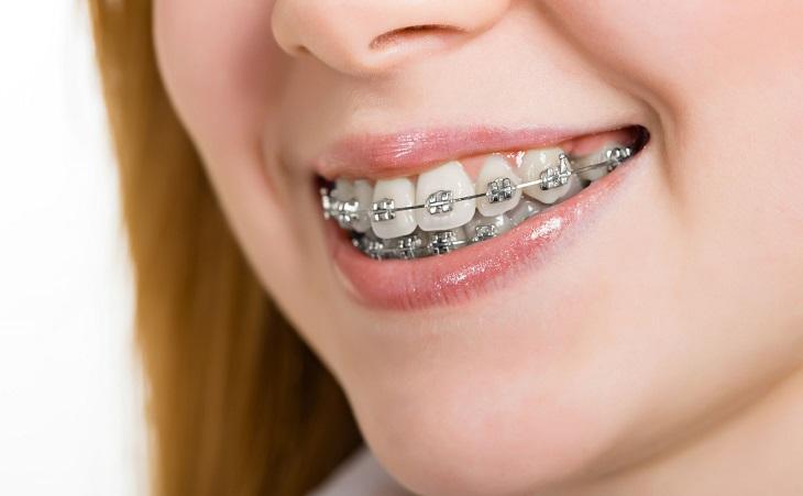 Niềng răng có phải nhổ răng khôn không? Vấn đề nhiều người thắc mắc