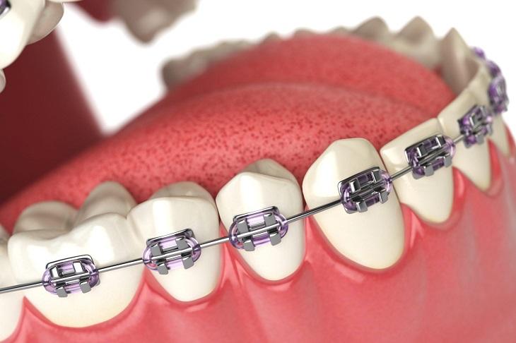 Nhổ răng khôn để tạo khoảng trống dịch chuyển các chiếc răng lệch lạc khác
