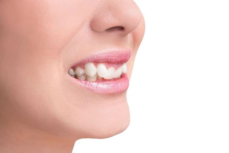 Nếu răng khểnh mọc quá mức thì bạn có thể niềng răng để tăng tính thẩm mỹ cho hàm răng và khuôn mặt
