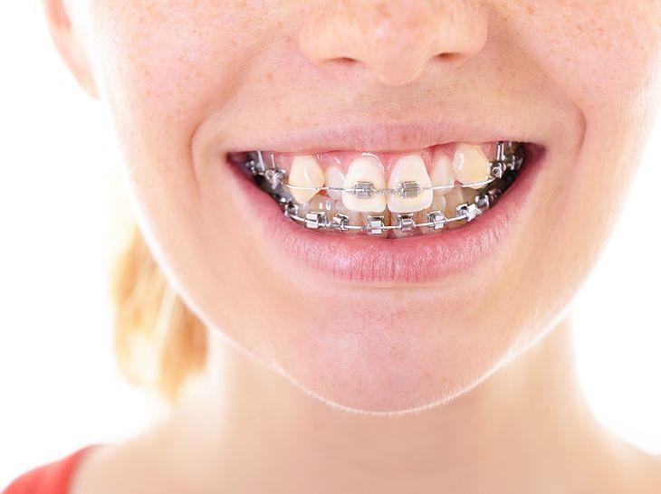 Niềng răng khểnh giúp ổn định chức năng nhai và hạn chế mắc các bệnh răng miệng