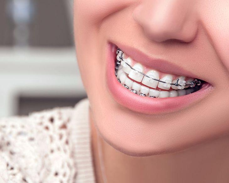 Hiện có nhiều hình thức niềng răng khểnh bạn có thể lựa chọn