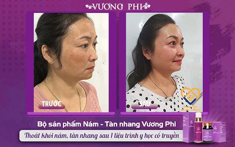 Làn da khách hàng Hồng Vân TRƯỚC - SAU sử dụng bộ sản phẩm Vương Phi loại bỏ nám lâu năm