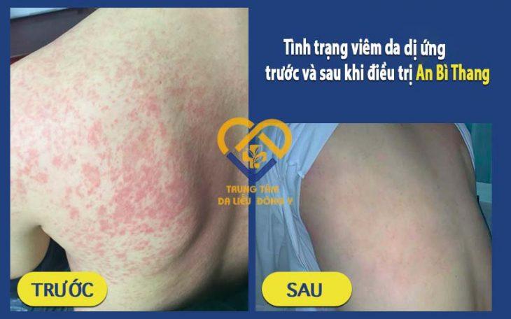 Kết quả điều trị viêm da dị ứng với bài thuốc An Bì Thang