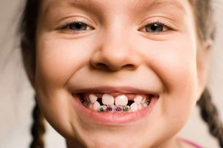 Niềng răng là biện pháp an toàn giúp khắc phục tình trạng răng bé mọc không đúng vị trí
