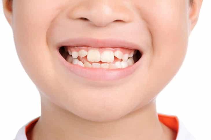 Việc nhổ những chiếc răng không lung lay cần được thực hiển bởi các bác sĩ chuyên khoa