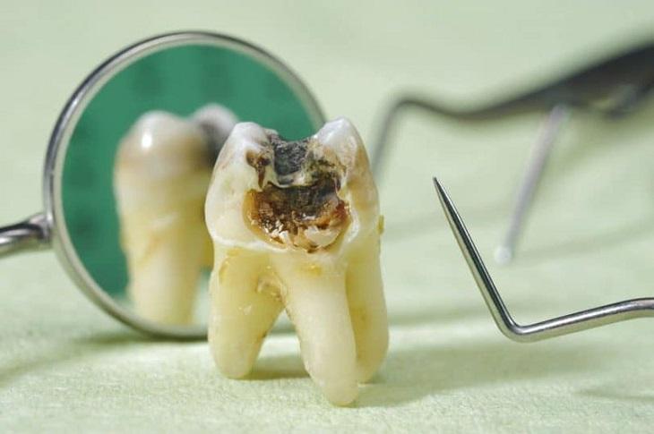 Sâu răng có chữa khỏi được không? - Vấn đề được nhiều người quan tâm
