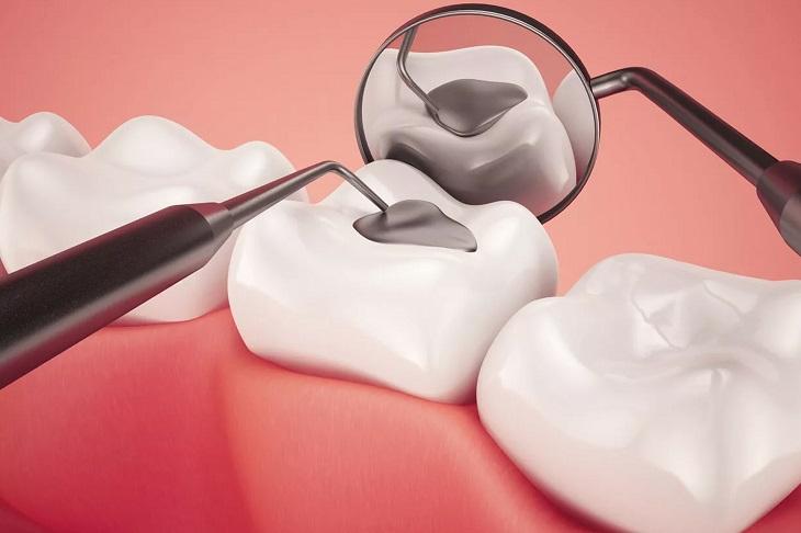 Không lo sâu răng có chữa khỏi được không với phương pháp hàn trám răng