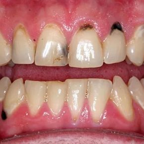 [Giải đáp] - Sâu răng có chữa khỏi được không? Biện pháp điều trị