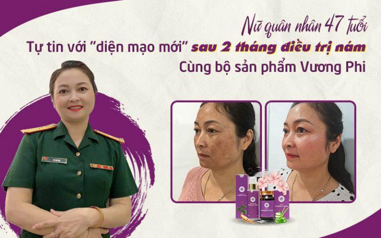 Hình ảnh sau 2 tháng sử dụng bộ sản phẩm Vương Phi của khách hàng Hồng Vân