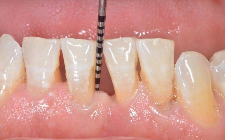 Tiêu chân răng là một trong các tác hại của niềng răng thường gặp