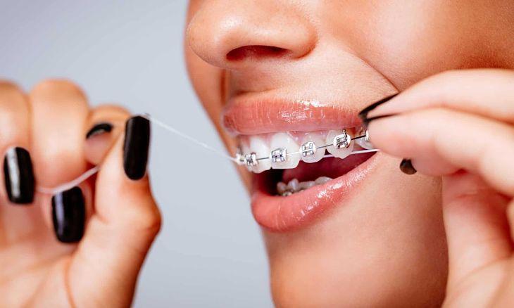 Vệ sinh răng miệng đúng cách hàng ngày giúp bạn hạn chế gặp phải các rủi ro khi niềng răng