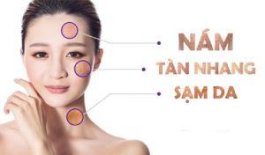 Tăng sắc tố da là nỗi ám ảnh của tất cả phái đẹp