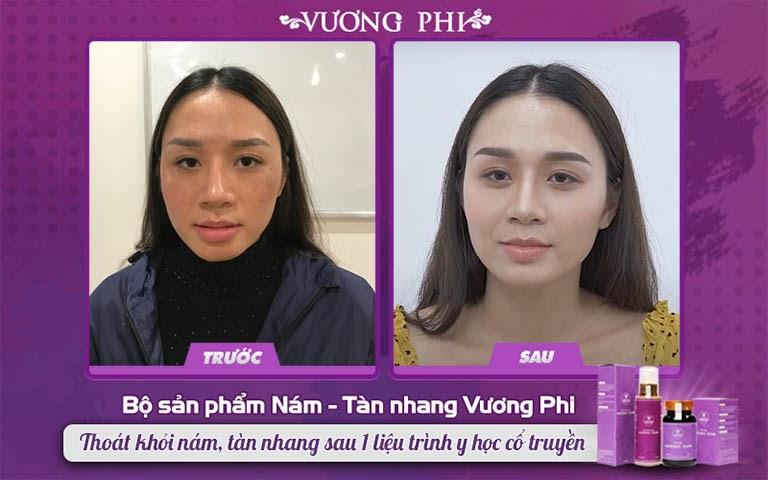 Kết quả sau 2 tháng sử dụng Vương Phi của Thu Hương