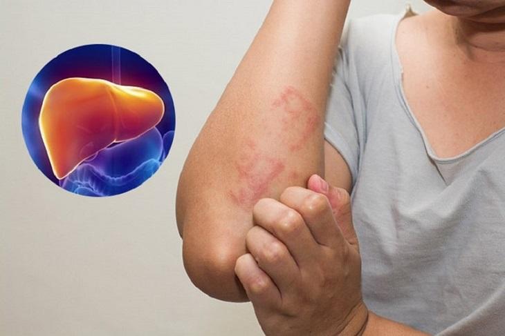 Người bị suy giảm chức năng gan không nên dùng viên sủi Efferalgan