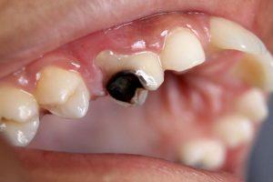 Top 10 thuốc trị sâu răng tốt nhất, được nhiều người tin dùng