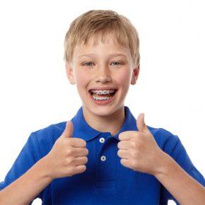[Chuyên gia giải đáp] Trẻ bao nhiêu tuổi thì niềng răng được?