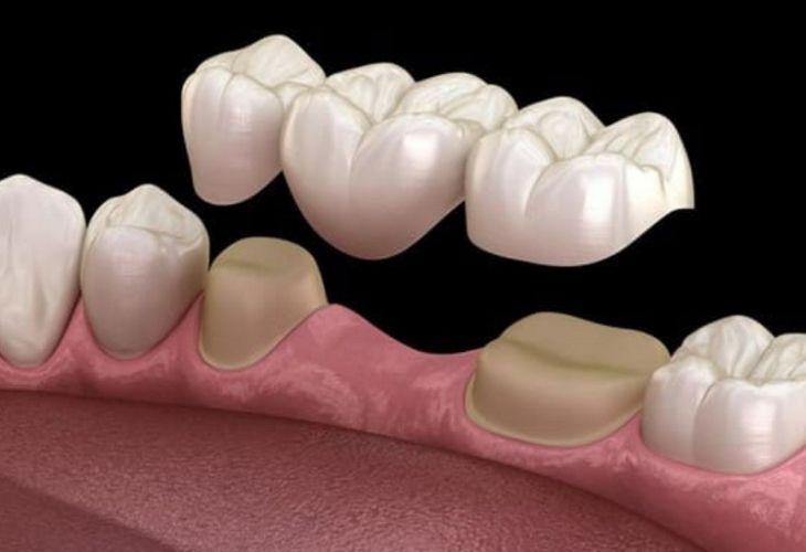Phương pháp trồng răng bắc cầu