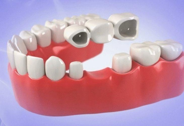 Làm răng bắc cầu giúp phục hồi chức năng ăn nhai của răng đã mất