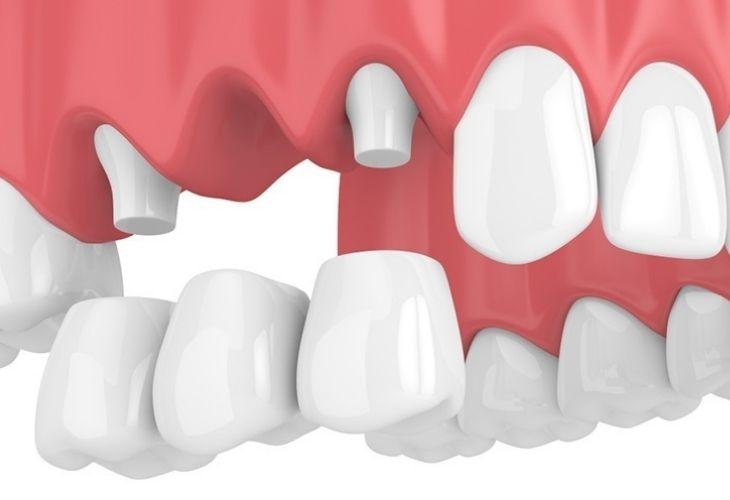 Quy trình làm răng bắc cầu khá đơn giản và ít phức tạp hơn so với làm răng Implant