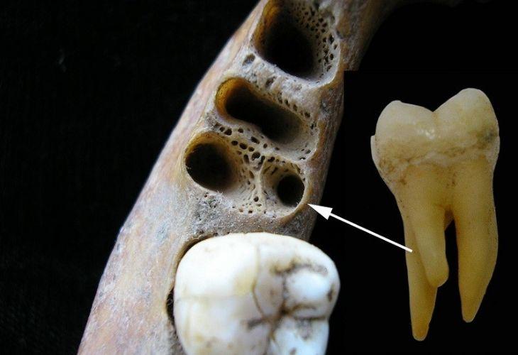 Răng hàm thường sẽ có 3 - 4 chân răng