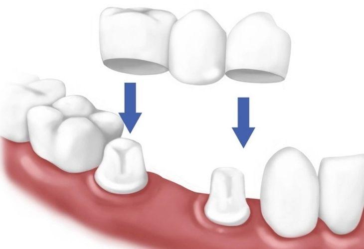 Phương pháp làm cầu răng sứ