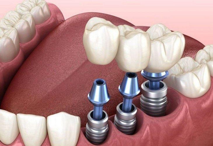 Trồng răng hàm sẽ ít đau hơn nếu được thực hiện tại nha khoa uy tín với đầy đủ thiết bị nha khoa hiện đại