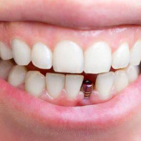 Trồng Răng Implant Ở Đâu Tốt Và Giá Cả Phải Chăng?