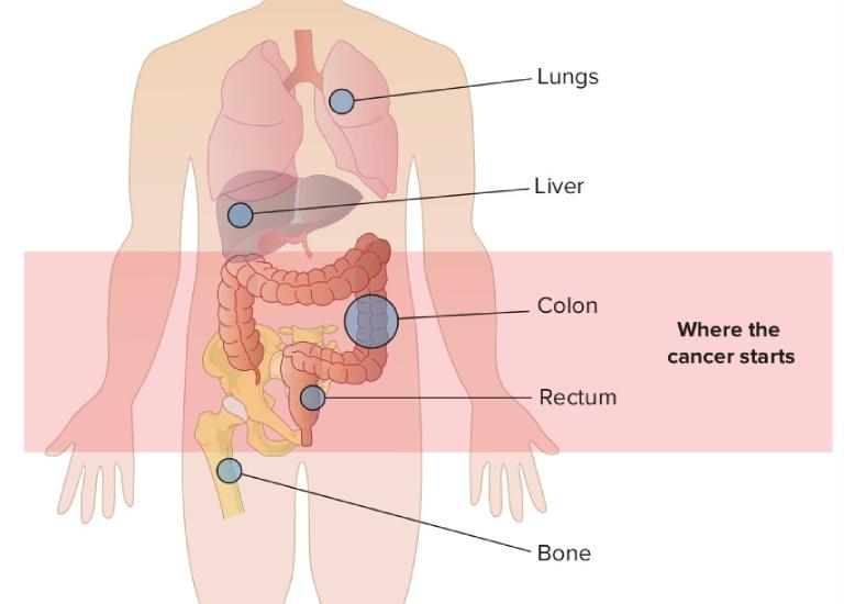Ung thư dạ dày giai đoạn 3