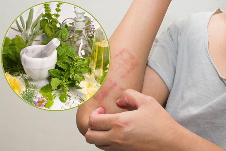 Điều trị bệnh bằng các nguyên liệu tự nhiên tại nhà