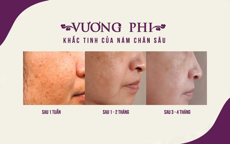 Quá trình cải thiện nám chân sâu của khách hàng Lê Hương Lan