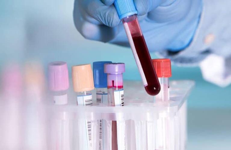 xét nghiệm - Chẩn đoán ung thư dạ dày