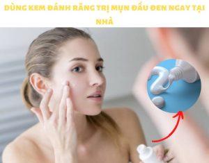kem đánh răng trị mụn đầu đen