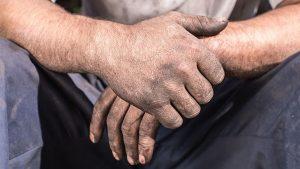 Bệnh sạm da nghề nghiệp gây mất thẩm mỹ, khiến người bệnh tự ti