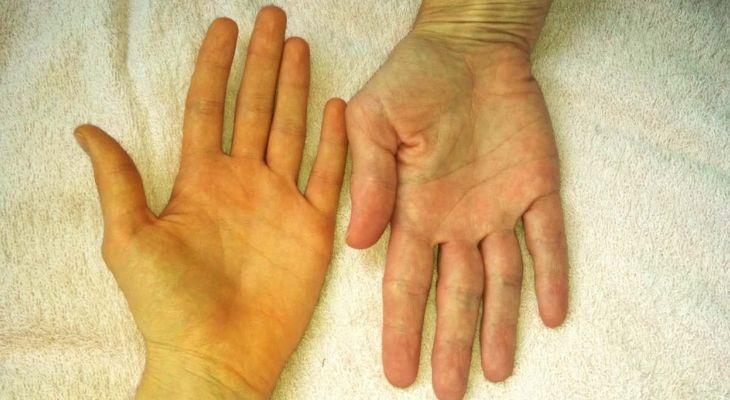 Vàng da là biểu hiện của bệnh ở giai đoạn nặng