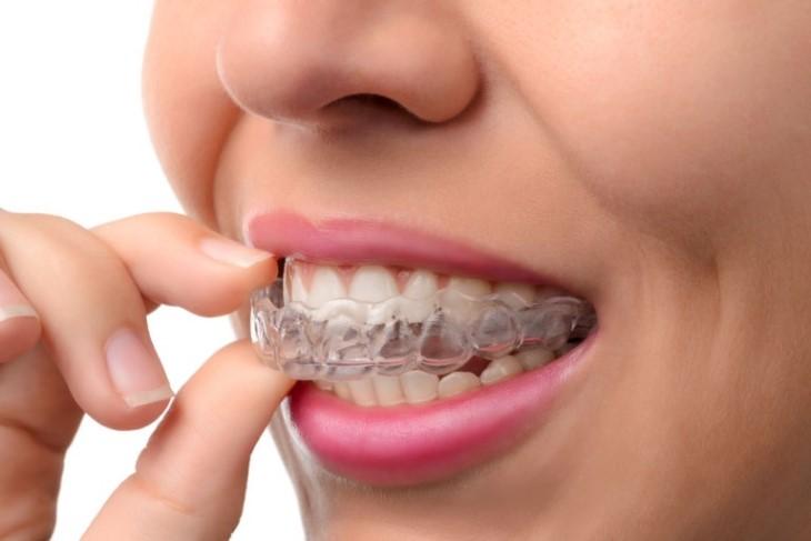 Niềng răng trong suốt Invisalign có nhiều ưu, nhược điểm
