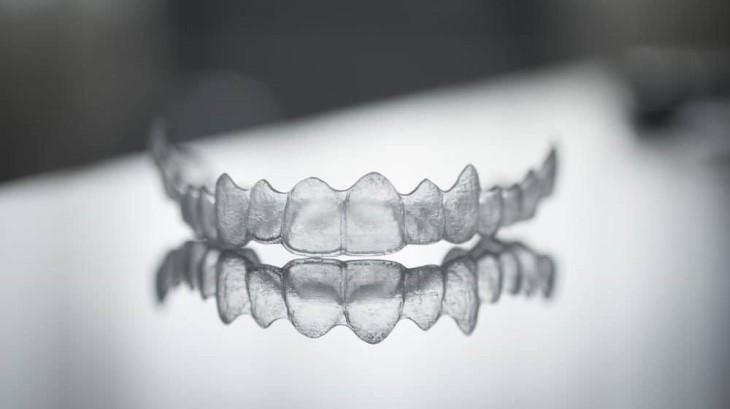 Niềng răng vô hình Invisalign thường có mức giá thành rất cao