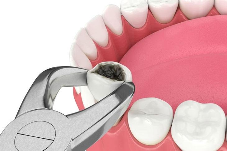 Chọn địa chỉ thực hiện niềng răng nhổ răng số 3 uy tín, chất lượng