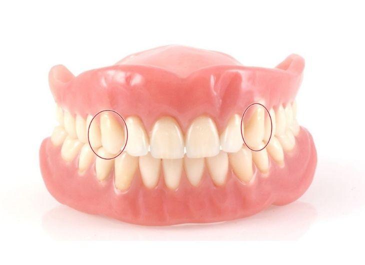 Giải đáp thắc mắc xung quanh niềng răng nhổ răng số 3