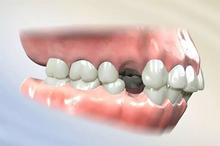 Niềng răng nhổ răng số 4 để tạo khoảng trống dịch chuyển các chân răng lệch lạc về đúng vị trí