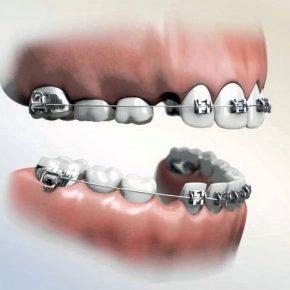 Niềng răng nhổ răng số 4 có nên không? Có nguy hiểm không? Địa chỉ thực hiện an toàn