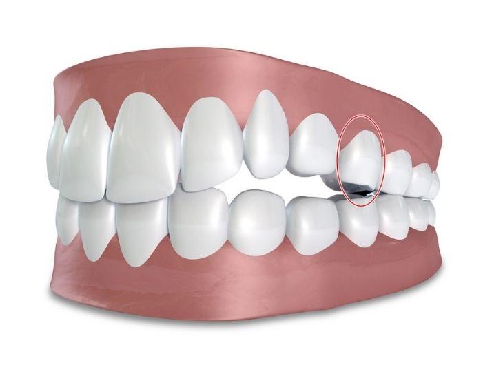Vị trí răng số 5 trên cung hàm